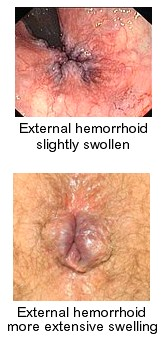 stop hemorrhoids and constipation by following these simple rules., Skeleton